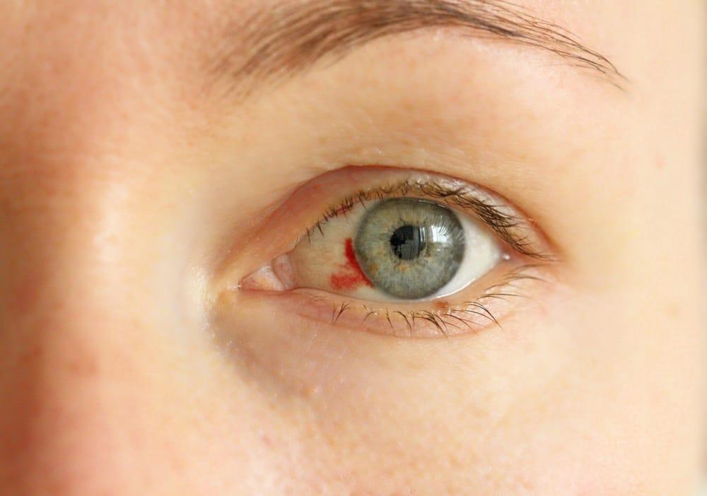 Cuales son los sintomas de tension ocular