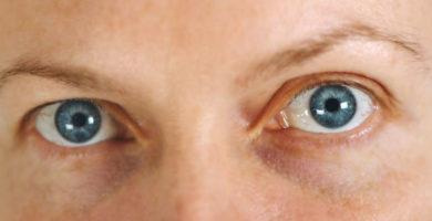 Qué es el glaucoma y cómo prevenirlo.